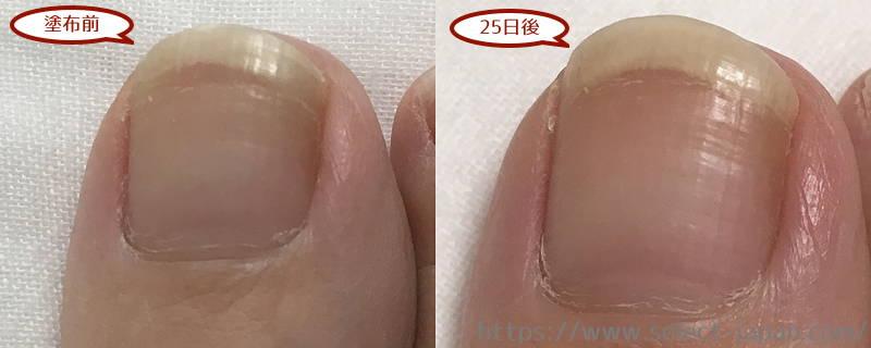 興和 kowa ドクターネイル Dr.nail 足爪 ディープセラム FT deep serum イタリア製 違い 足爪用 手爪用