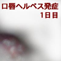 口唇ヘルペス 発症1日目