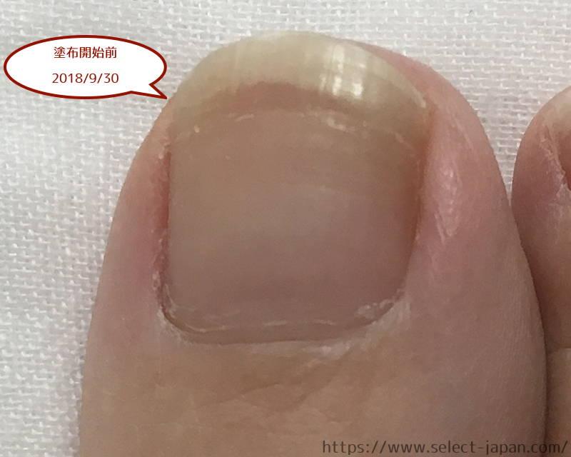 興和 kowa ドクターネイル Dr.nail 足爪 ディープセラム FT deep serum イタリア製 比較