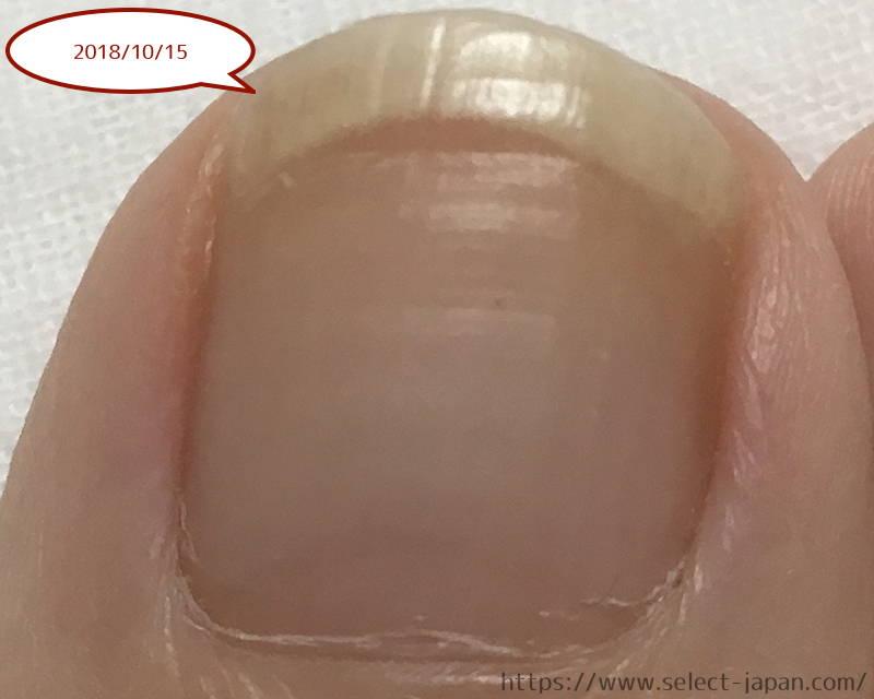 興和 kowa ドクターネイル Dr.nail 足爪 ディープセラム FT deep serum イタリア製 違い